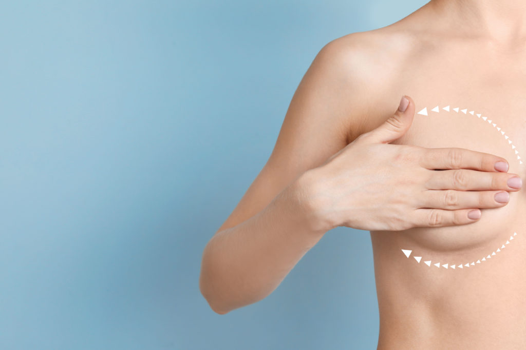 Brustverkleinerung in Hamburg/ © AdobeStock