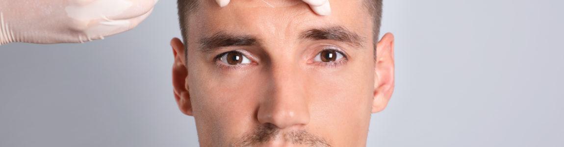 Botox für Männer